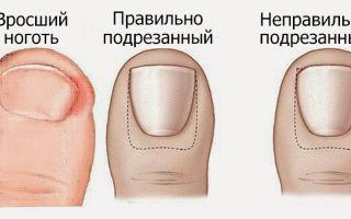 Родинка и вросший ноготь: как избавиться от недостатков