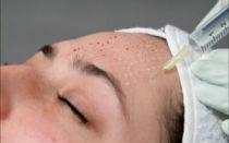 Мезотерапия для кожи лица