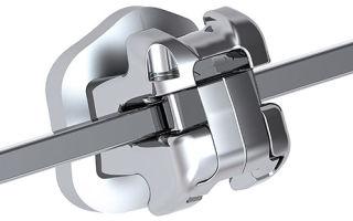 Самолигирующиеся брекеты: чем удобны системы без лигатур